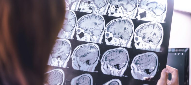 Featured image Newcastle expert awarded £2.5m for dementia research