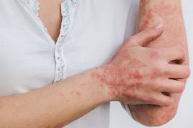 Image showing woman with psoriasis