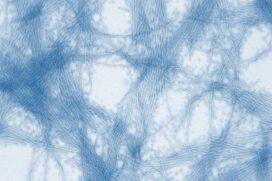 Microscopic image of ESP test