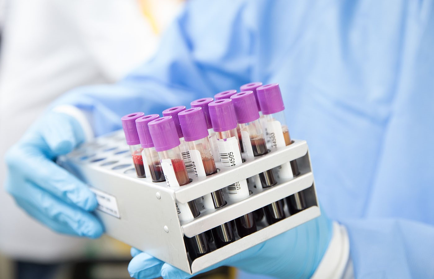 image showing scientist with blood samples